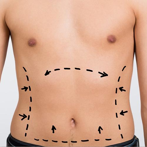 جراحی شکم - ابدومینوپلاستی
