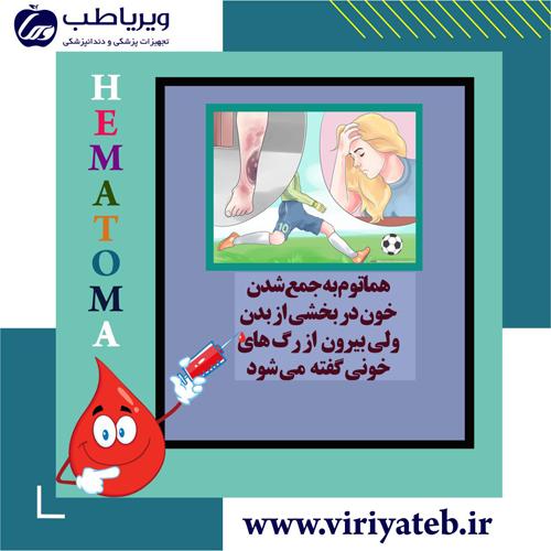هماتوم (?What is a hematoma)